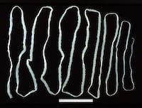 how do you get a tapeworm